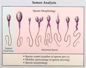sperm count vs masturbation frequency
